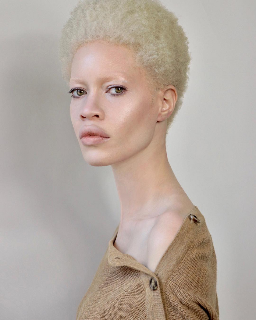 Az amerikai Diandra Forrest volt az első olyan nő, akit albínóként szerződtetett egy vezető modellügynökség. Kislány korában sokat bántották külseje miatt, és azért kezdett modellkedni, hogy fejlessze az önbizalmát.