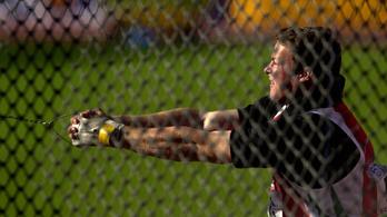 Egy olimpiai döntőben Ace Ventura mosolya nagy fegyver