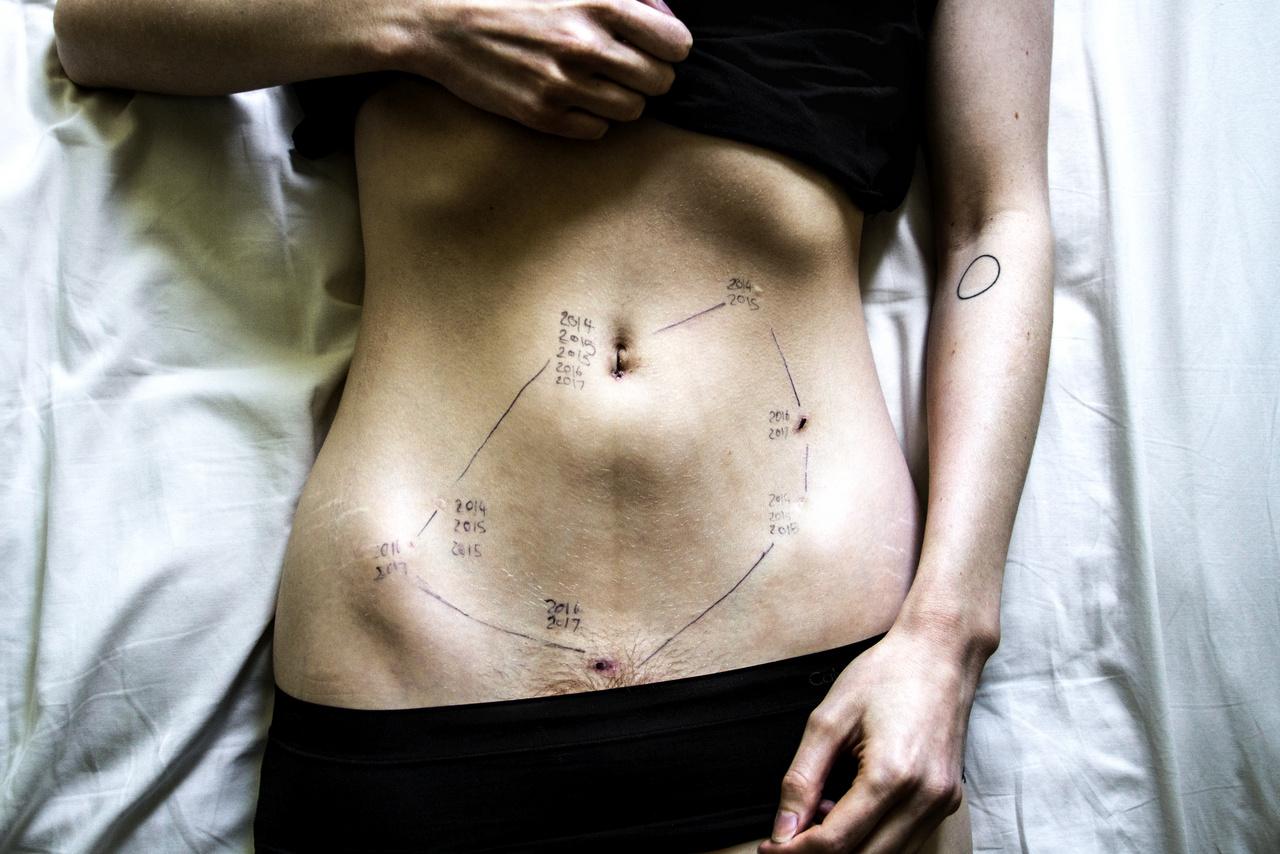 Ez volt a sorozat legelső képe, Wileman ötödik műtétje táján. A fotós szerint jól összefoglalja, mit is jelent az endometriózis. A hasán a műtéti sebhelyek mellé kerültek a dátumok, és a sebekből kirajzolódó formát tükrözi vissza a tetoválás, ami arra emlékezteti Wilemant a legkétségbeejtőbb időkben, hogy az élet azért megy tovább. Az endometriózisnak jelenleg nincs olyan gyógymódja, ami az okot megszüntetve végleges gyógyulást adna. Az okot ugyanis egyszerűen nem ismeri a tudomány a mai napig. Gyakran elhangzó kritika, hogy a férfiközpontú tudományos világban drasztikusan keveset kutatják a nőket sújtó endometriózist. Kezelésként szoktak alkalmazni mesterségesen előidézett menopauzát, néha méheltávolítást (ami nem mindig szükséges, és nem is mindig segít). A kezelés legáltalánosabb és leghatékonyabb módja a műtéti kimetszés, ha az endometriózisban jártas, erre külön képzett szakemberek operálnak. A beavatkozást laparoszkópiával végzik, úgynevezett kulcslyuk műtétekkel. Az operáció, illetve az így szerzett minta vizsgálata az egyetlen út a biztos diagnózisállításra is.