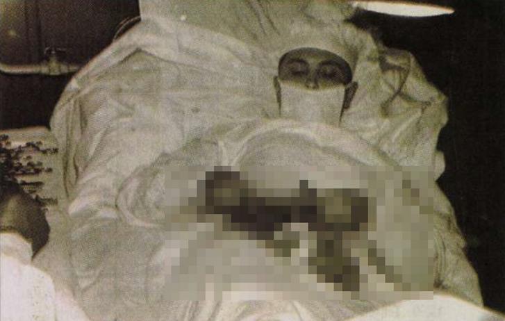 Leonid Rogozov a műtét közben
