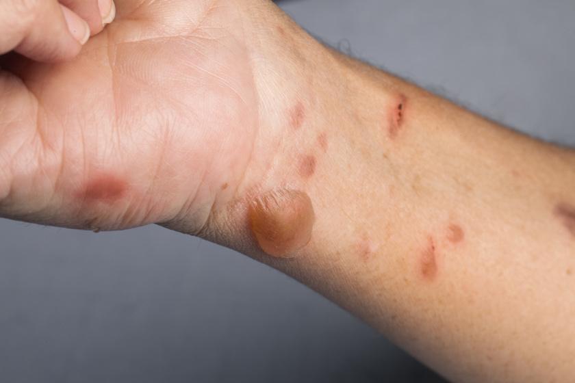 A cukorbetegségben szenvedők egy része tapasztalhatja hólyagok keletkezését a bőrön, főként a kézen, a lábon, az ujjakon, az alkaron. A bullosis diabeticorum esetén a dudorok az égés után fellépő hólyagokhoz hasonlítanak, akár egy-két nagy vagy sok kicsi is előjöhet. Gyorsan gyógyulnak, ha az alapbetegséget megfelelően kezelik.