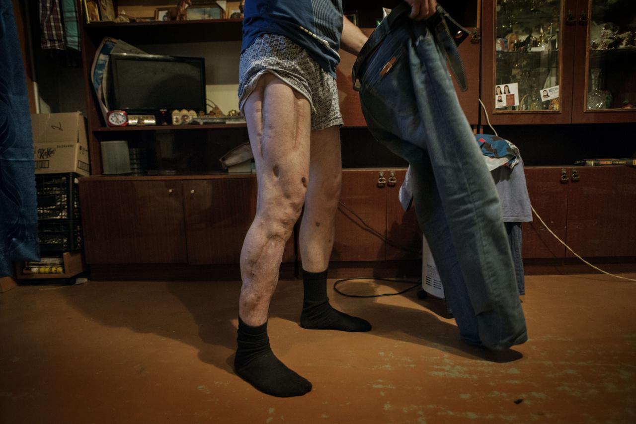 Pavel 2014-ben hagyott fel a krokodil használatával, elmondása szerint azután, hogy harmadszorra is halálközeli állapotba került a drog miatt. A krokodil hatása élete végéig elkíséri, egyik lábát hosszú és mély sebhelyek szántják végig, azoknak a műtéteknek az örök mementói, amikor eltávolították az elhalt húsdarabokat.