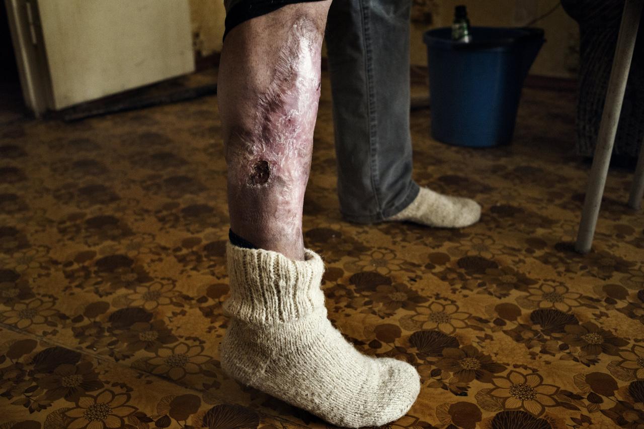Az évekig tartó krokodilhasználat nyomán kialakuló sebek az egyik függő lábán.