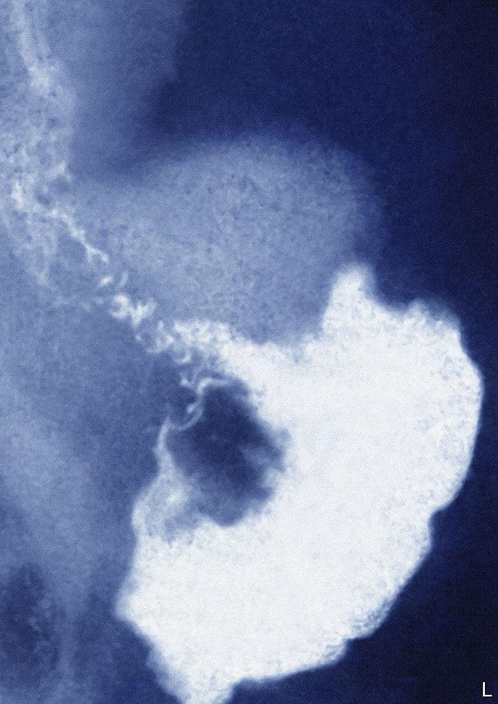 Így néz ki röntgenfelvételen a gyomorrák.