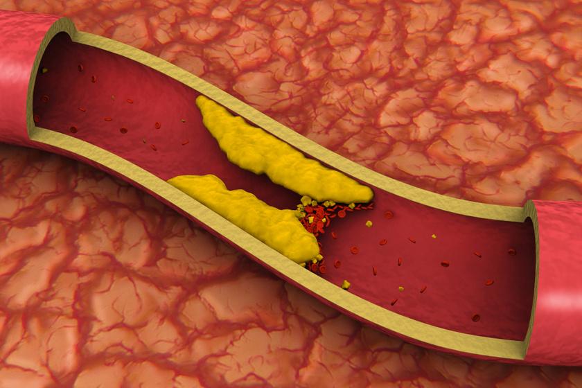 trombózis kialalakulása   1