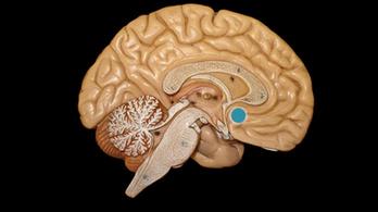 Magyar kutatók közelebb kerültek az Alzheimer okához