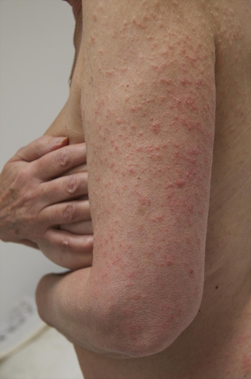 napallergia tünet kiütések