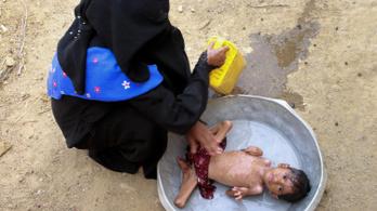 UNICEF: Gyerekek millióit fenyegeti az éhínség Jemenben