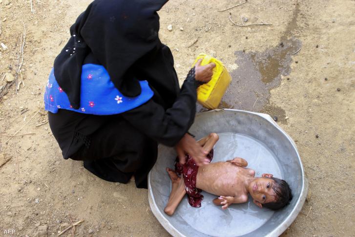 Édesanyja mosdatja az ötéves Salwa Ibraimot Jemen északi, Hajjah tartományában lévő háza előtt 2020. június 23-án. A súlyosan alultáplált kislány súlya mindössze három kilogramm.