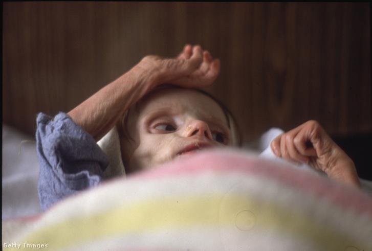 HIV-fertőzött gyerek a bukaresti Victor Babes kórházban 1990-ben
