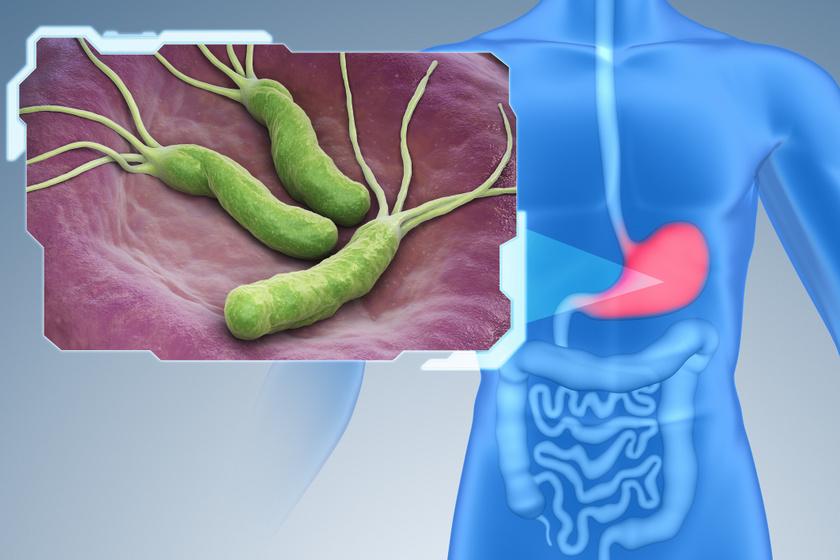 A Helicobacter pylori baktérium.