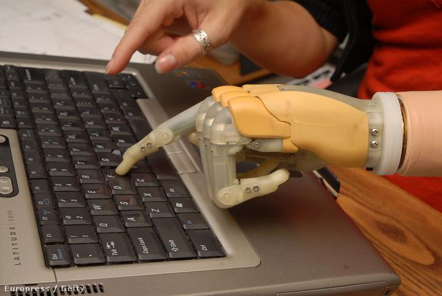 Az első kereskedelmi forgalomban kapható bionikus kéz, melynek ujjai is külön mozgathatók