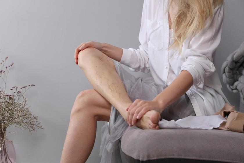 3 ok, ami miatt trombózis alakulhat ki: így lehet megelőzni a betegséget