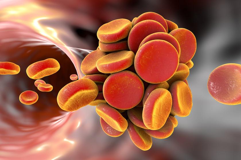 verrog-trombozis