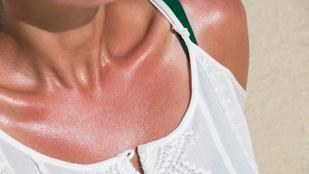 Így enyhíthetsz a napégés kínzó tünetein