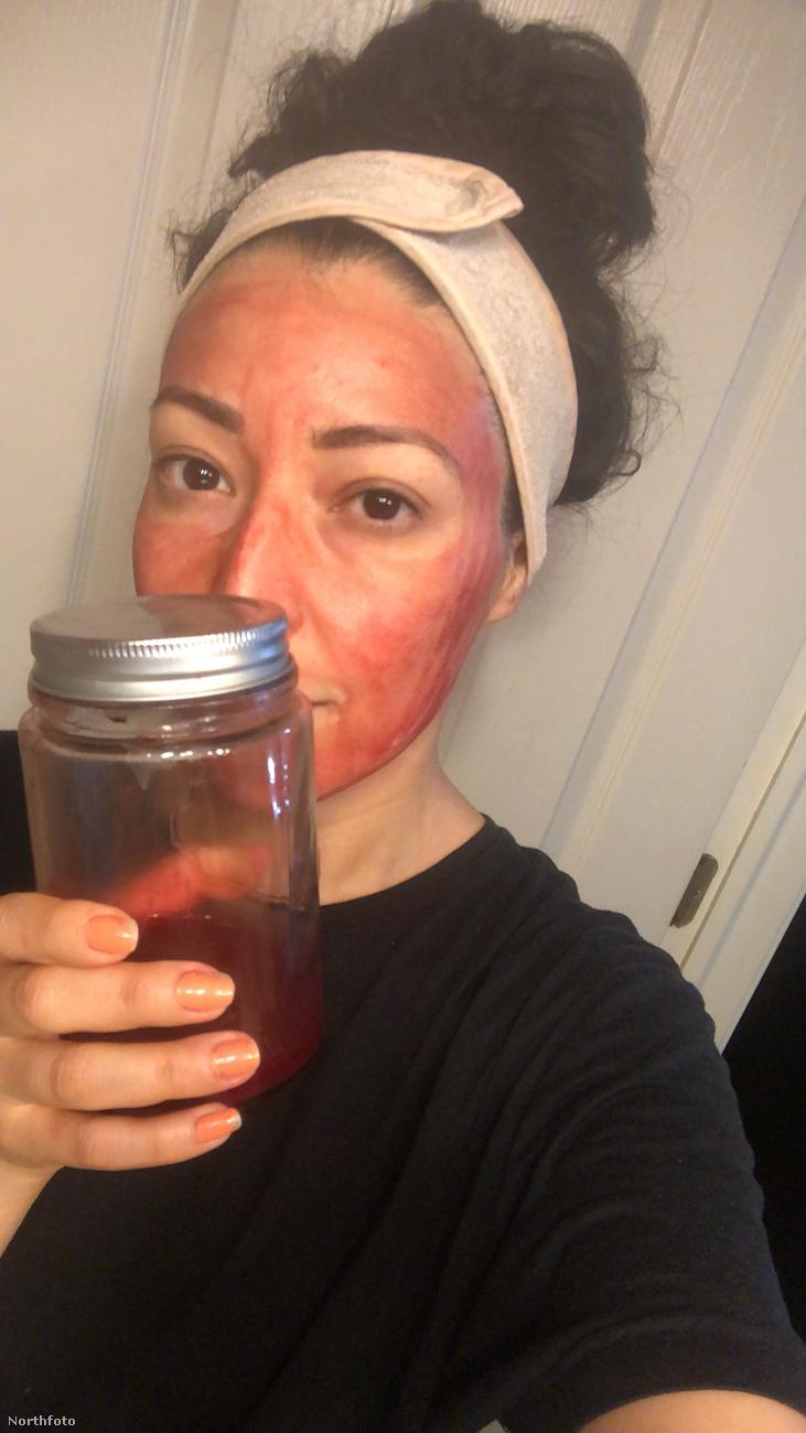 Itt mutatja Mary Miranda a befőttesüveget, amiben azokon a napokon a vért gyűjti.