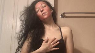 Csak felnőtt olvasóinknak mondjuk el, miből csinálta ez a chicagói nő az arcpakolást