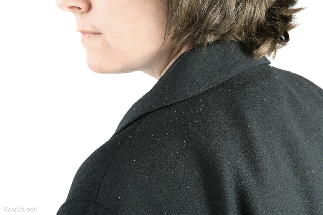 stockfresh 331256 shoulder-with-dandruff sizeM