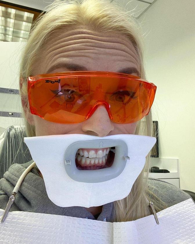 Lindsey Vonn szintén egy volt profi sportoló, ő a fogorvosnál is ilyen jól érzi magát.