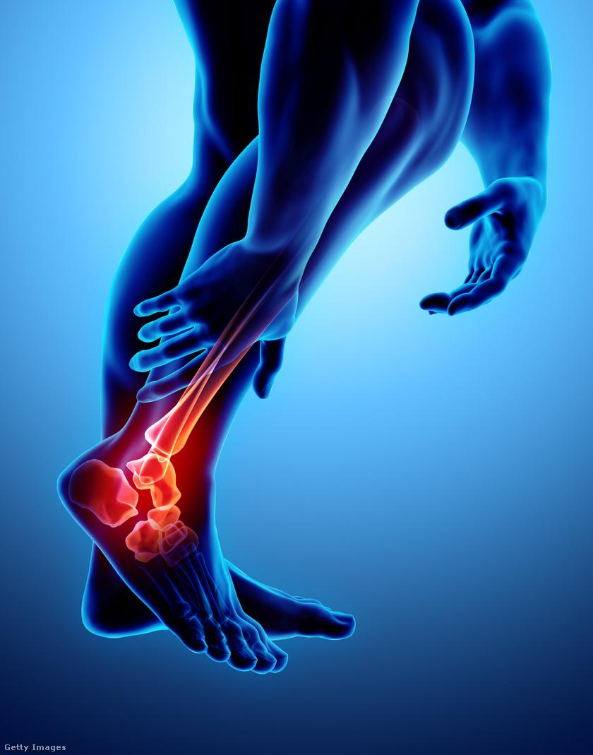 lábfájdalom5