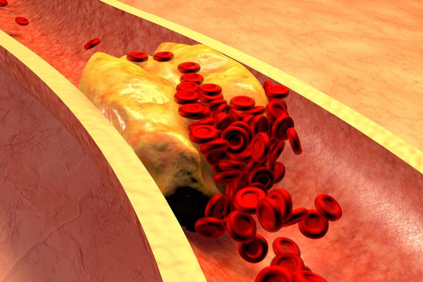 magas-koleszterinszint2