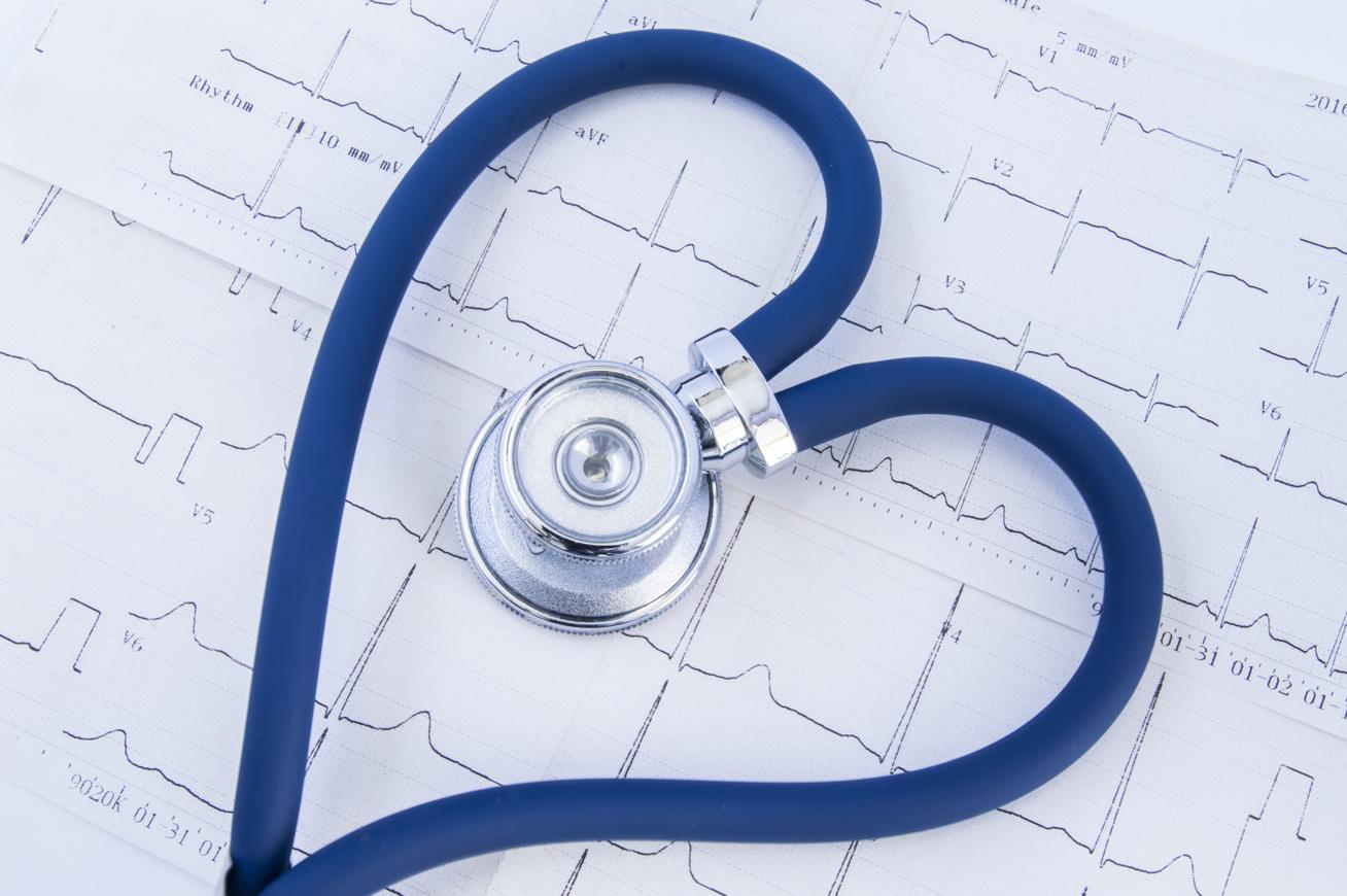 kardiomiopátia1