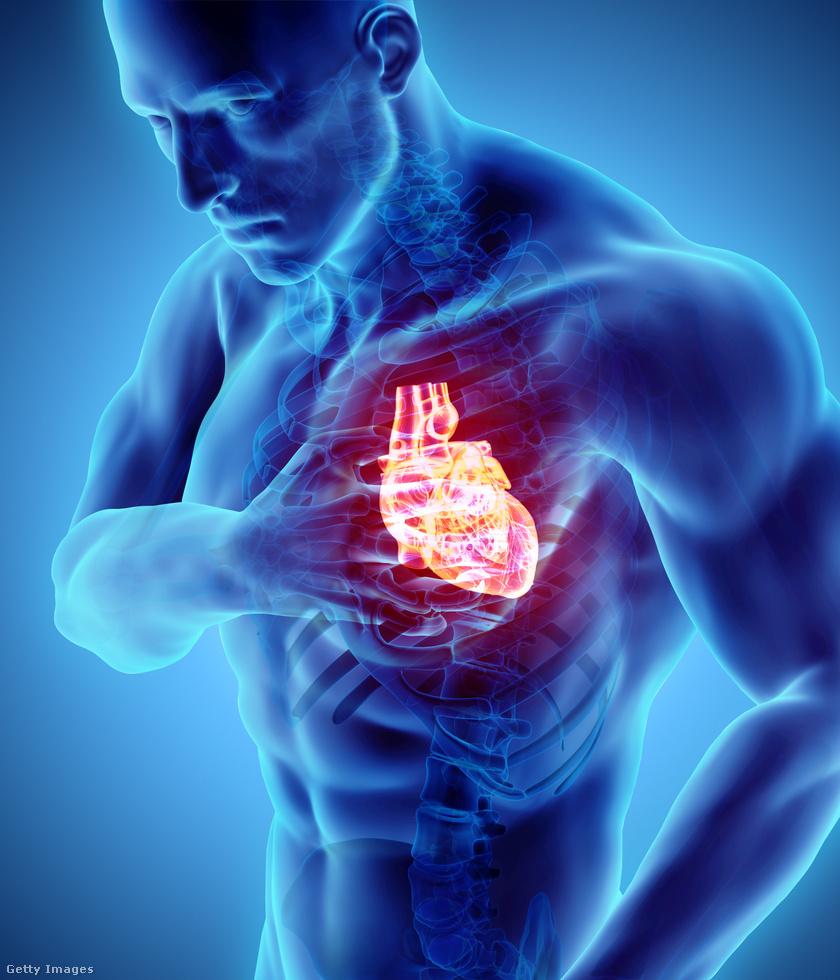 kardiomiopátia2