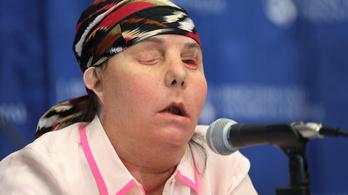Második arcátültetésén esett át egy nő az Egyesült Államokban