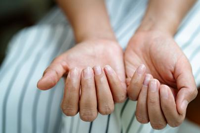 köröm betegség kéz ujjak