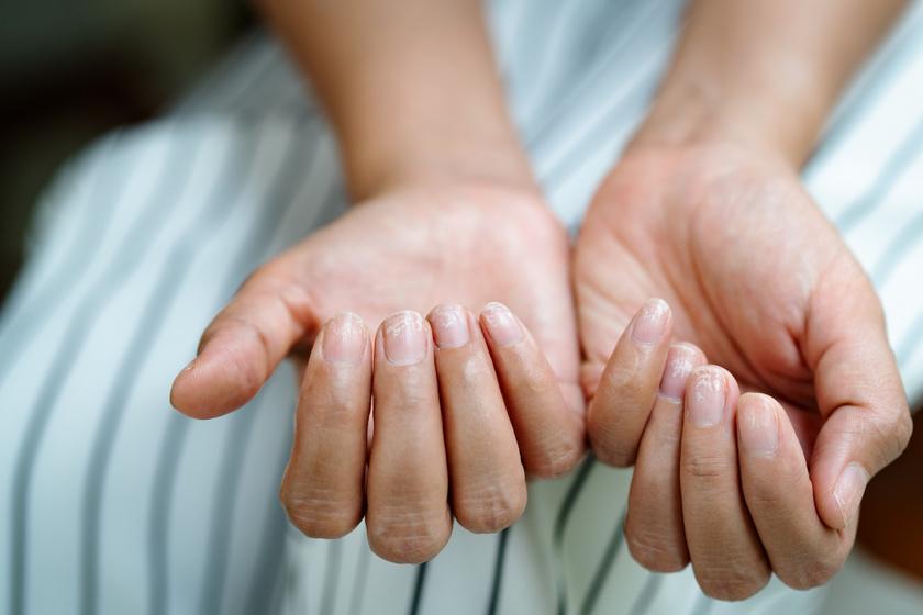 Súlyos betegséget is jelezhetnek a köröm elváltozásai: 9 tünet, amit kevesen ismernek fel