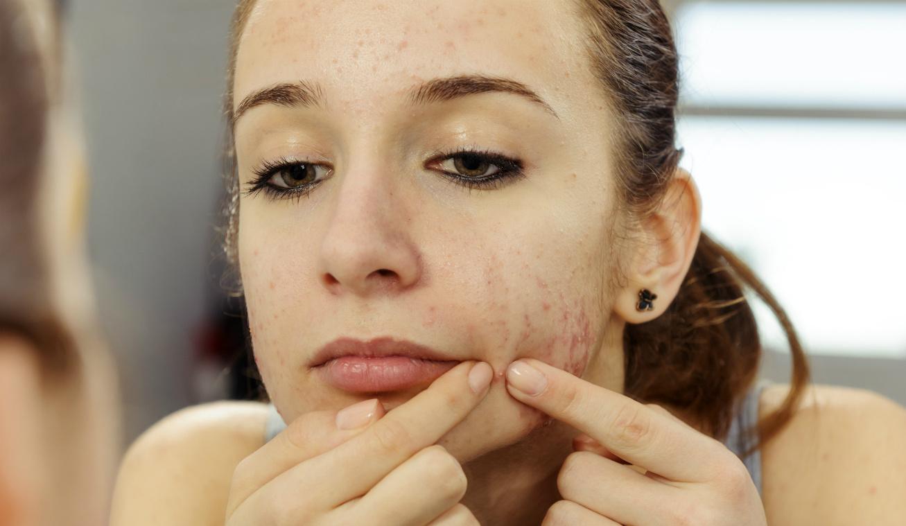 pattanás arc alsó része nyitó (2)