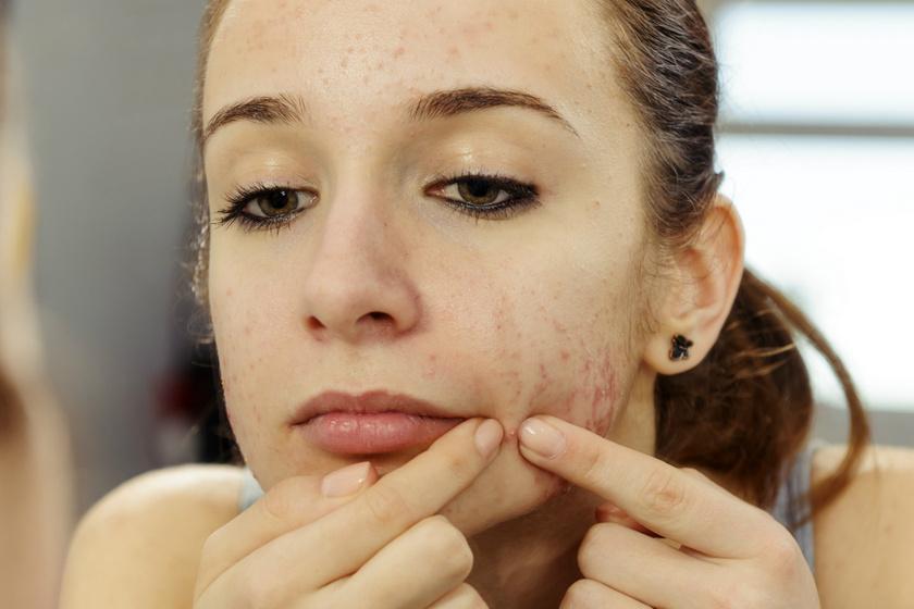 Milyen betegséget jeleznek az arc alsó részén megjelenő pattanások? Nem csak hormonális zavar okozhatja