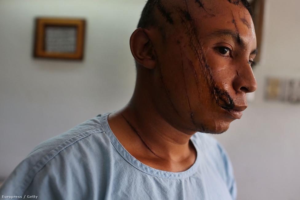 Tegucigalpa, Honduras, 5. hely. Lélekszám: 1 126 534. 100 ezer lakosra                         jutó gyilkosságok száma: 99,69                         Honduras fővárosában évek óta a szervezett, és kevésbé szervezett                         alvilág háborúja dúl. A statisztikák szerint az évi 1100 gyilkosság                         áldozatainak 902 százaléka 15 és 40 év közötti férfi. A nagy                         szegénység, a magas munkanélküliség, és a közbiztonság teljes hiánya                         miatt az utcai bűnözés a mindennapi valóság része, főleg a 2009-es                         puccs óta. Az utcai bandák háborúja mellett egyre jellemzőbbek a                         turisták elleni rablótámadások is.