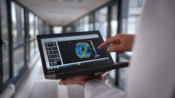 Mesterséges intelligencia segíti a stroke-betegek kezelését Magyarországon