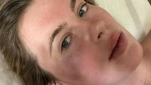 Ireland Baldwint egy kábítószeres nő megütötte és kirabolta
