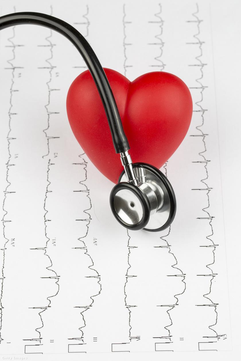 szívritmuszavar3
