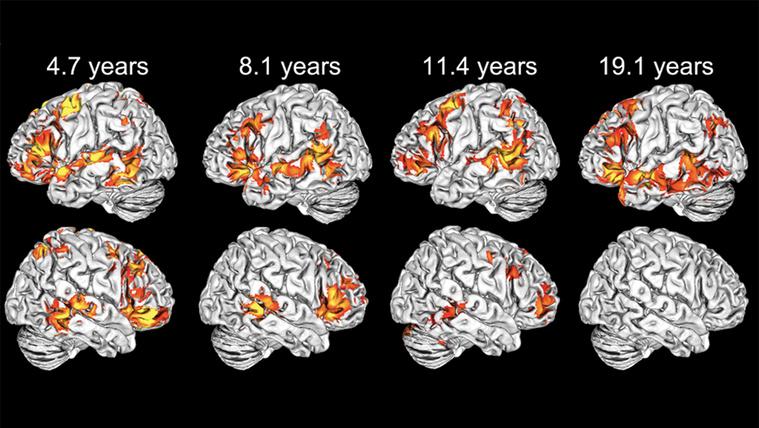 Dacolva a felnőttekkel mindkét agyféltekéjüket használják a gyerekek