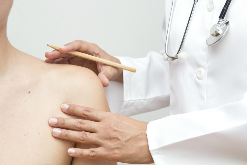 A magas koleszterinszintet is jelezheti: 8 elváltozás a bőrön, ami betegségre utalhat