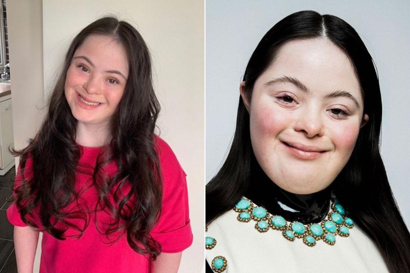 Nemrégiben a fél világ Ellie Goldsteinről beszélt, a 18 éves szépség ugyanis a Gucci Beauty kampányában tündökölt. Mindig is vágyott a hírnévre, élvezi a modellkedést, és szeretné, ha még több fogyatékossággal élő vagy különleges tehetség kapna helyet a divatvilágban.