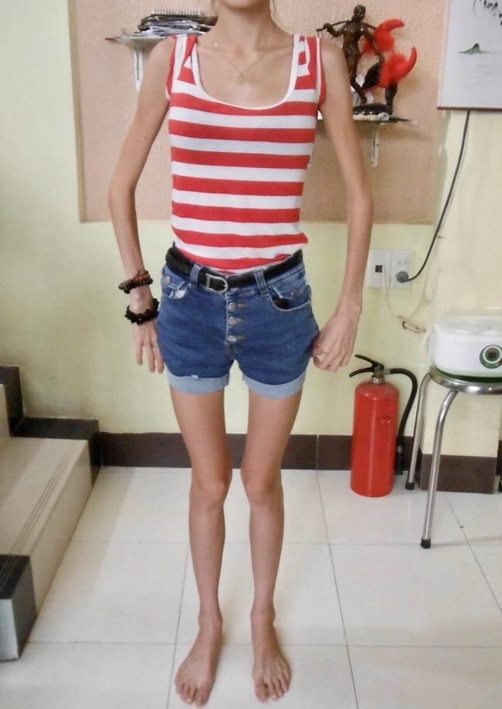 A fotónkon a 25 éves, Vietnámban (Ho Chi Minh-ben) élő Mai Kerivelt láthatja, aki sokáig étkezési zavarral küzdött, anorexiás volt és szinte semmit nem evett