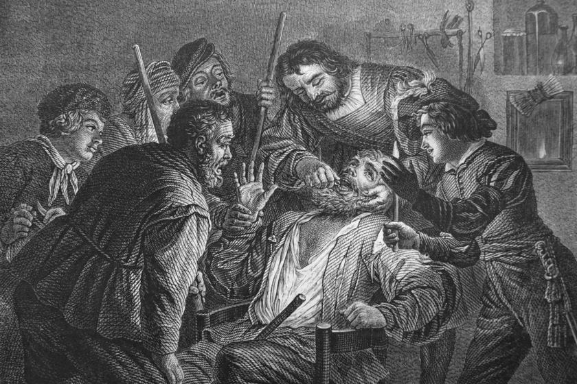 Már a középkorban is létezett a fogfehérítés: 8 meglepő tény a fogorvoslás történetéből