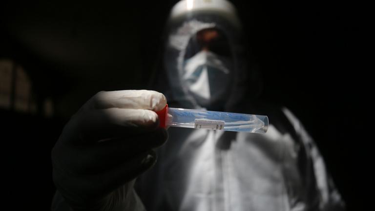 Élesben vizsgálják a nyálból kimutatható koronavírusteszteket