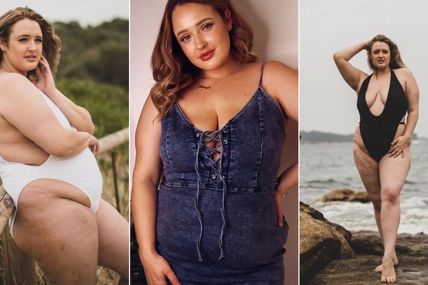 A modell megmutatta, milyen a túlsúly ruha nélkül: durva kritikákat kapott, mégis megszerette önmagát