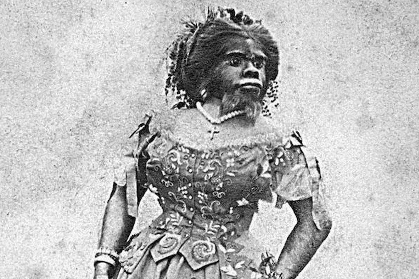 Szegény nőt az orángután és ember közös utódjának titulálta az orvos: ritka betegségben szenvedett Julia Pastrana