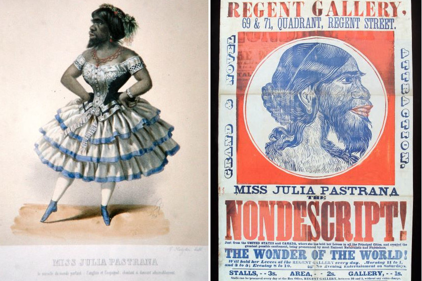 Szőrös nő, Majomarcú nő, Majomnő, Kutyaarcú nő, Páviánnő - néhány azok közül a nevek közül, amin szegény Julia Pastranát szerepeltették.