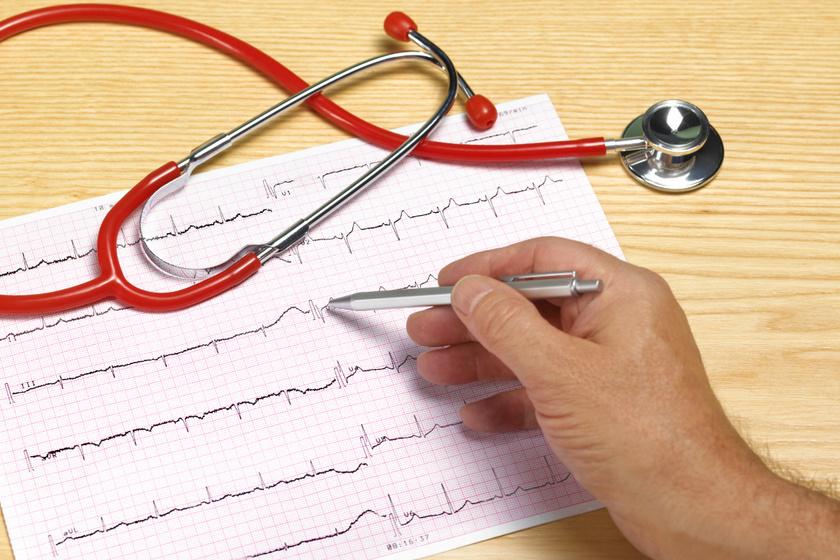Miért fontos a kardiológiai szűrés intenzív testmozgás mellett? Életet is menthet a vizsgálat
