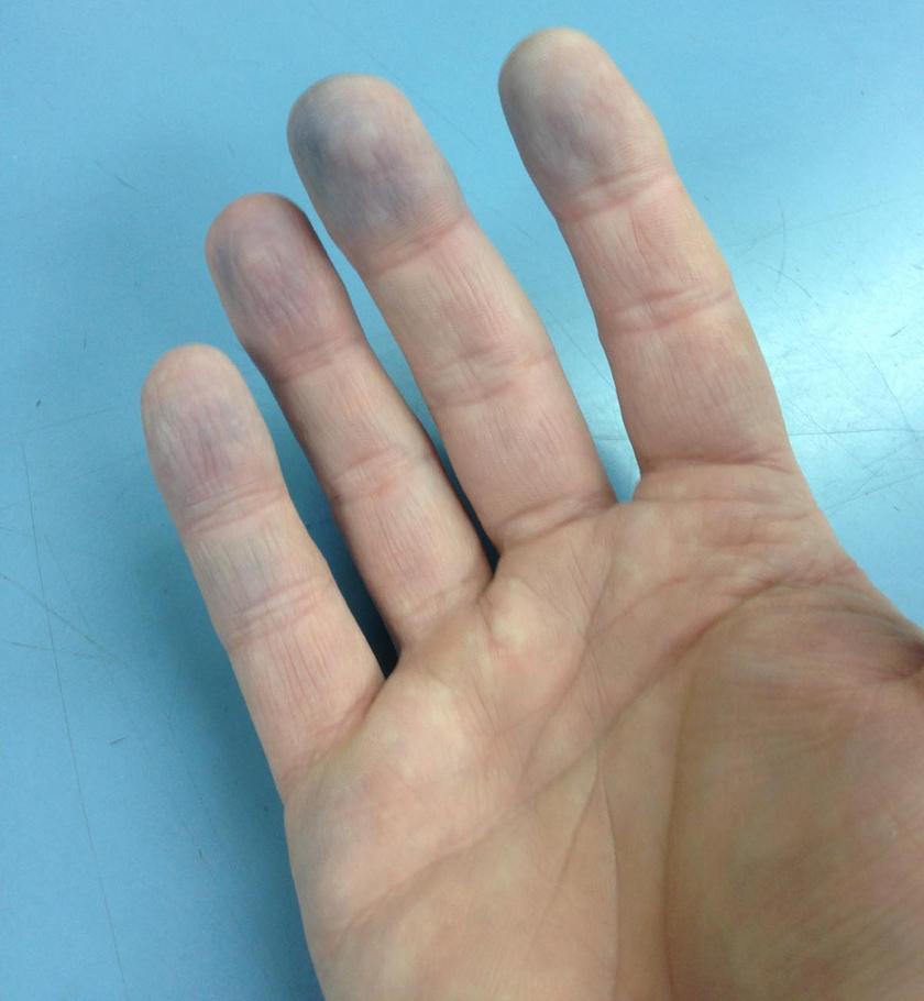 A vérkeringés zavarát, a vérben levő oxigén alacsony szintjét mutatják meg a kékre színeződő ujjbegyek a kézen és a lábon is, a probléma szívbetegséghez vezethet. Mivel pedig az érintett szövetek elhalhatnak, mielőbbi kezelésre van szükség.