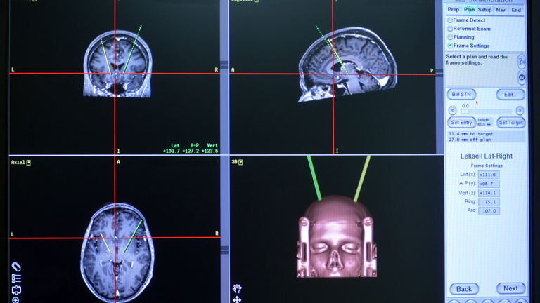 Gyógyíthatóvá válhat a Parkinson-kór