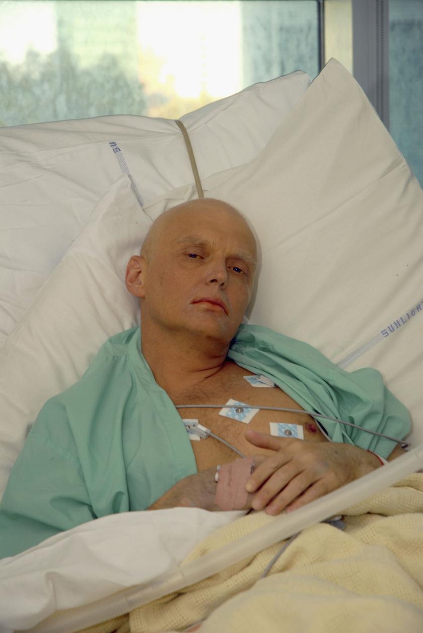 Alekszandr Litvinyenko a mérgezés után.