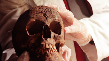 Szifilisz és tuberkulózis a régész szemével